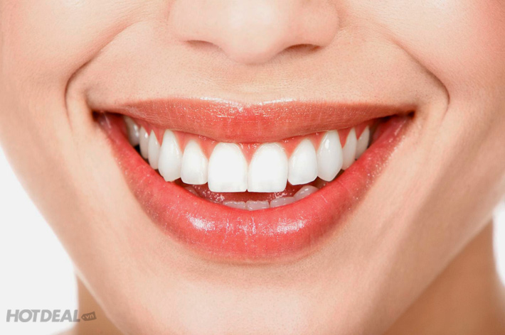 Lấy Cao Răng + Đánh Bóng Răng Tại Nha Khoa VipLab